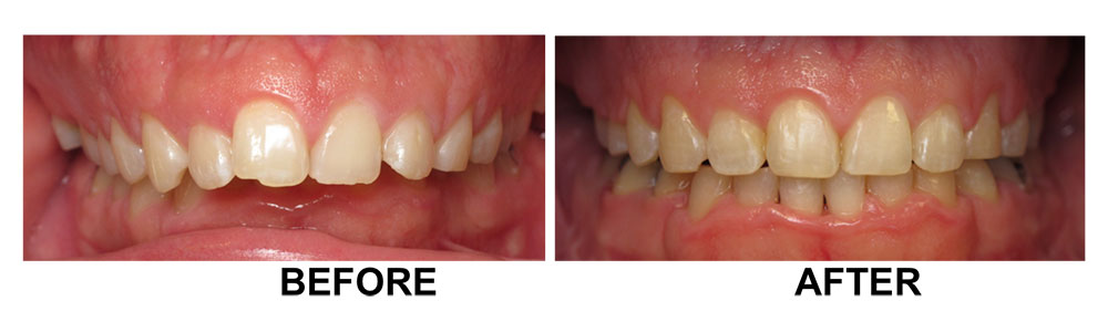 Before and After Orthodontics